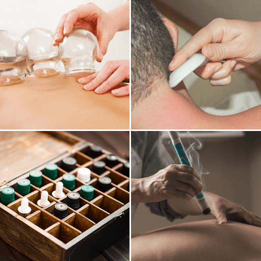 Chinese Cupping, Gua Sha & Moxibustion in the Blue Mountains